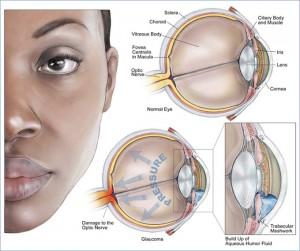 Raising Glaucoma Awareness