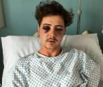 Tottenham Fan Beaten After Being Mistaken For a Chelsea Supporter