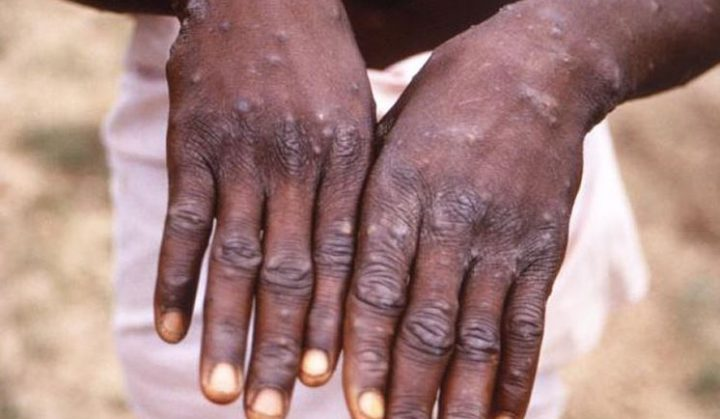 No Confirmed Case Of Monkey Pox In Abuja – HHSS